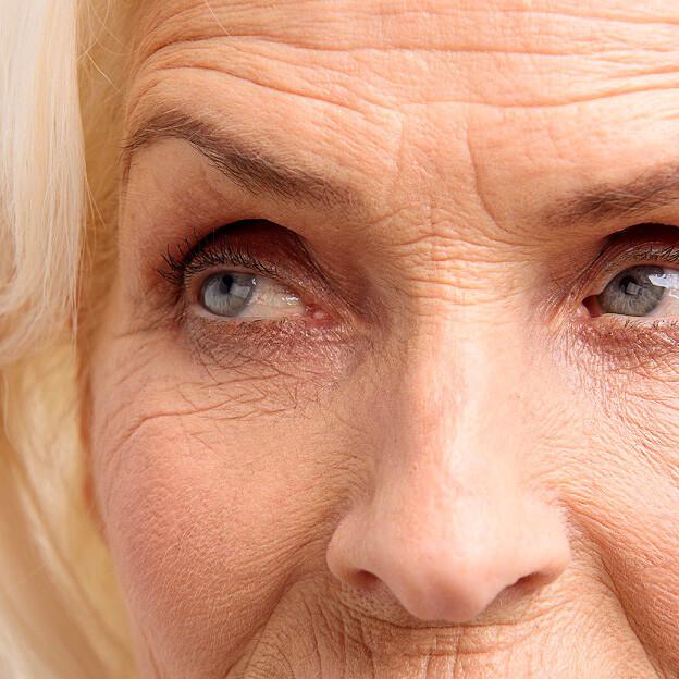 trattamento-creme-contro-rughe-e-imperfezioni-per-pelle-giovane-e-levigata-estetica-le-muse