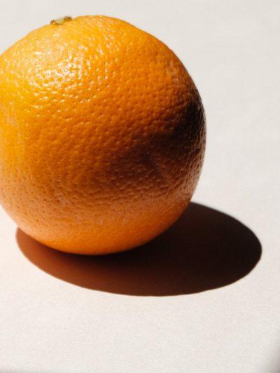 buccia-arancia-cellulite-trattamento-4-sedute-per-eliminarla-estetica-le-muse