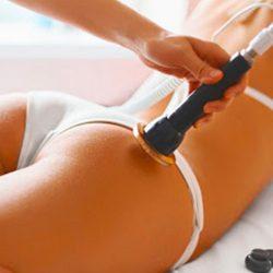 trattamento-corpo-radiofrequenza-estetica-le-muse